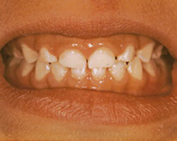 Black teeth stain removed - After photo