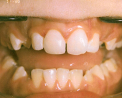 Fractured incisor - After photo